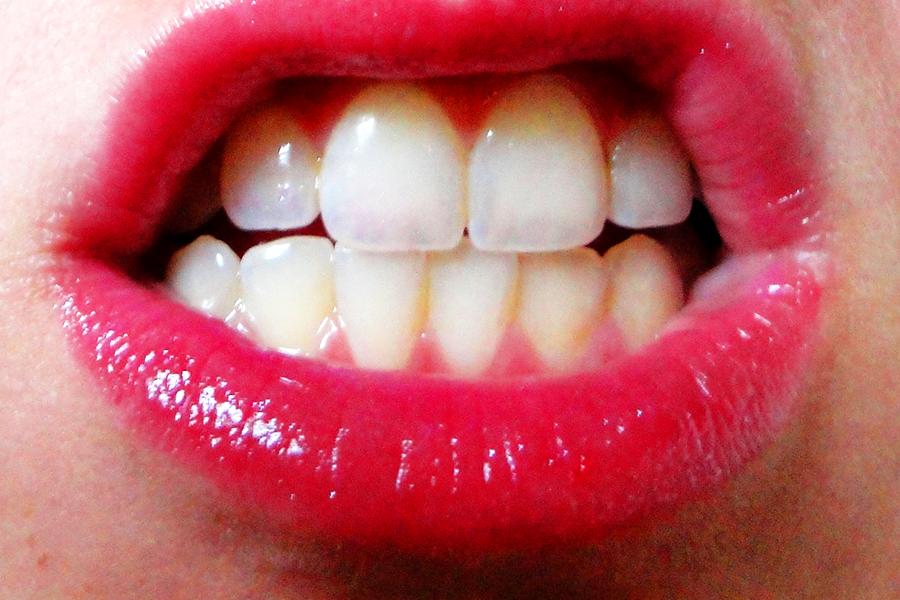 jama-ustna